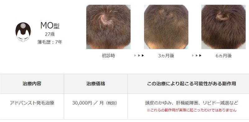 メンズヘルスクリニック東京治療例1
