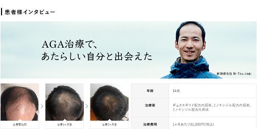 AGA治療を比較!- AGAヘアクリニック vs. メンズヘルスクリニック東京