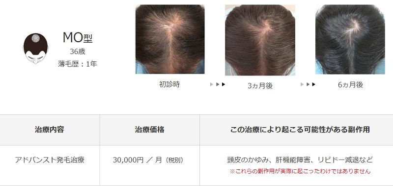 メンズヘルスクリニック東京治療例2
