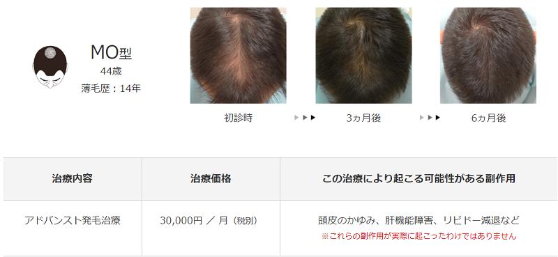 メンズヘルスクリニック東京治療例
